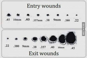 entry_wounds